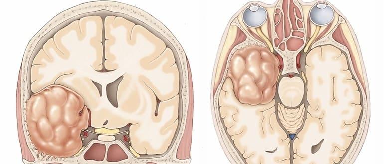 Менингиома мозга