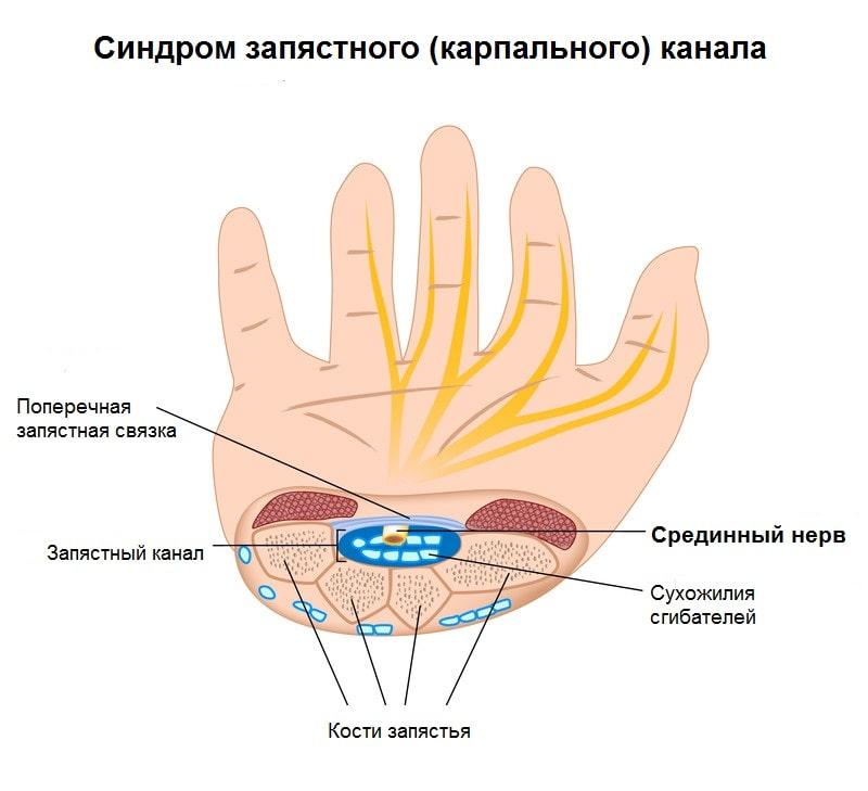Срединный нерв карпального канала