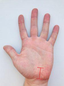 Туннельный синдром запястья руки лечение