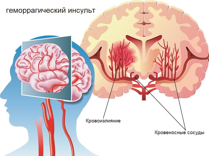 Кровоизлияние в мозг полушария