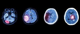Острый геморрагический инсульт