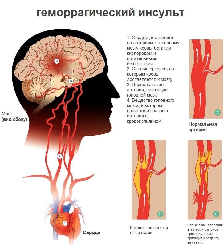 Кровоизлияние в мозг причины и последствия