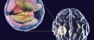 Эхинококкоз головного мозга
