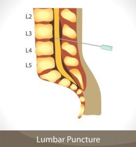 Пункция спинномозговой жидкости