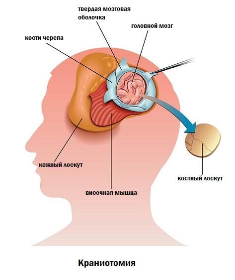 Трепанация черепа человека
