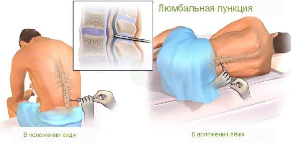 Спинная пункция